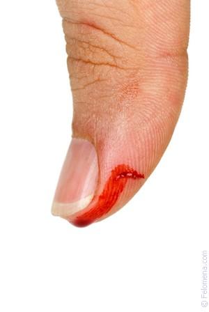 Занимались сексом и у нее пошла кров