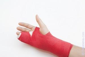 Перелом ноги или руки по соннику