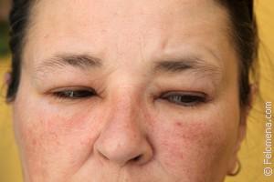 Сыпь на лице по соннику