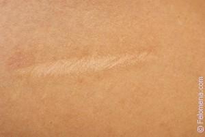 К чему сниться шрам на теле