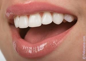 К чему снятся белые зубы у себя у другого человека сонник